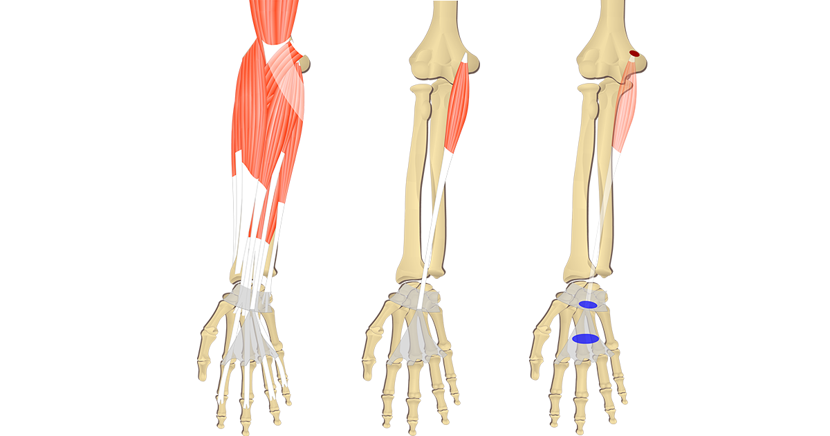 Featured image showing three images of the anterior forearm. The image on the left shows the bony elements and the muscles of the anterior forearm, the middle image shows the bony elements and isolated Palmaris Longus muscle, and the image on the right shows the attachments of the Palmaris Longus muscle connected by a transparent muscle itself.