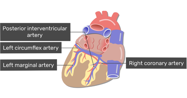 Posterior view of the posterior interventricular artery of the heart