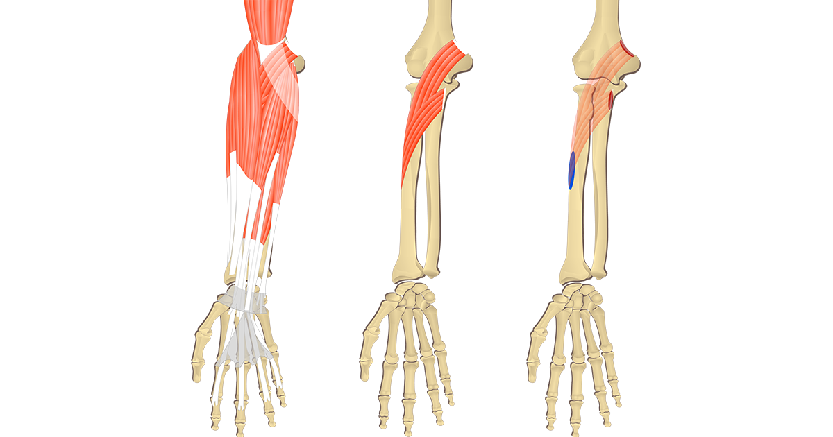Featured image showing 3 images of the anterior forearm bony muscles and associated structures. The image on the left shows all forearm muscles, middle image shows isolated Pronator Teres muscle and right image shows the attachments of the two heads of Pronator Teres.