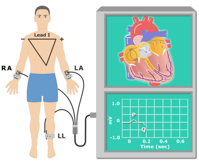 QRS wave EKG recording animationn slide 2