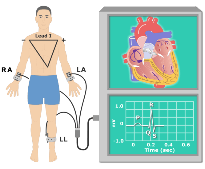 QRS wave EKG recording animationn slide 4