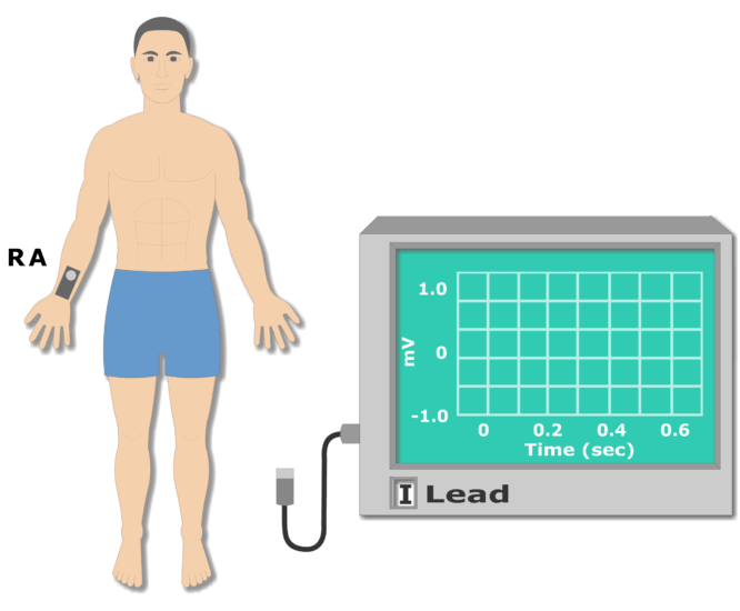 Right arm electrode placement animation slide 2