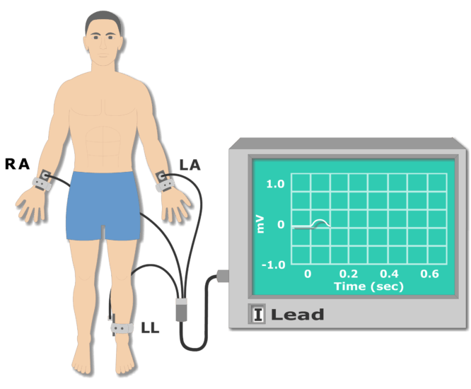 Sample ECG recording animation slide 3