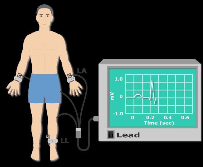Sample ECG recording animation slide 5