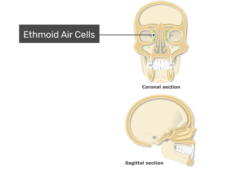 The ethmoid air cells highlighted and labeled on coronal and sagittal view of the paranasal sinuses