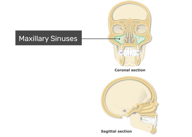 The maxillary sinuses highlighted and labeled on coronal and sagittal view of the paranasal sinuses