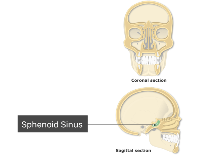 The sphenoid sinuses highlighted and labeled on coronal and sagittal view of the paranasal sinuses