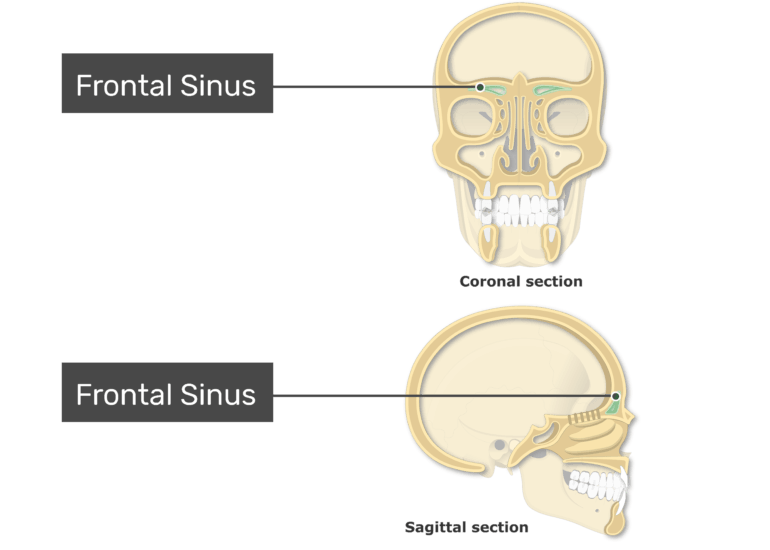 The frontal sinuses highlighted and labeled on coronal and sagittal view of the paranasal sinuses