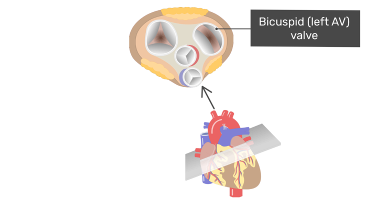Superior view of the bicuspid valve of the heart