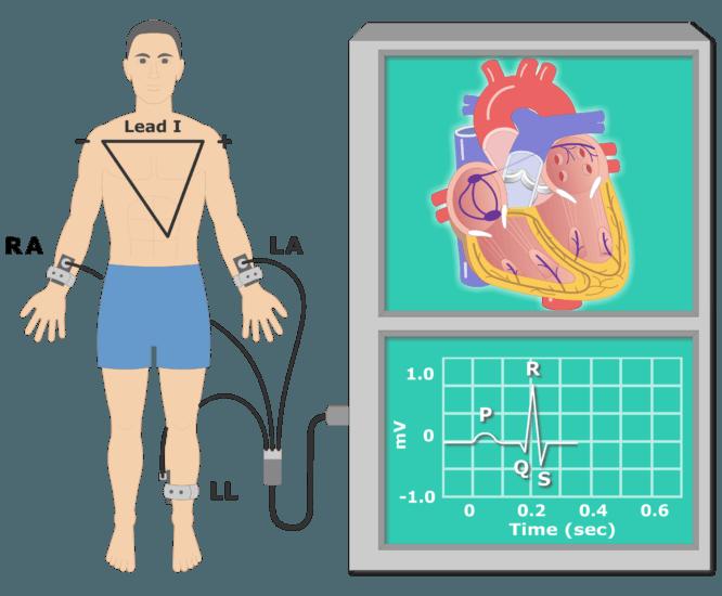 T wave EKG recording animation slide 1