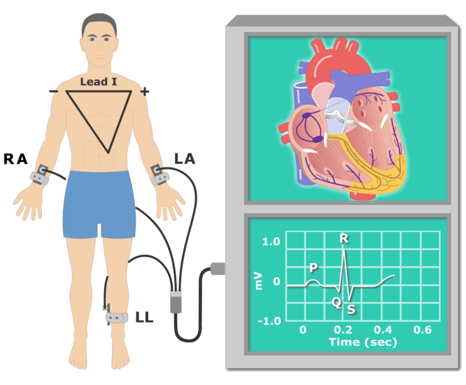 T wave EKG recording animation slide 2
