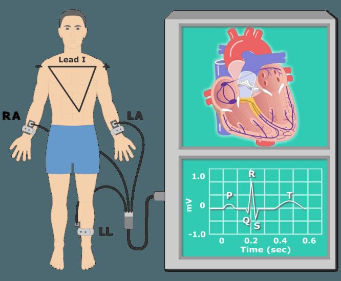 T wave EKG recording animation slide 3
