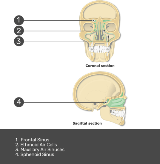 Test yourself on paranasal sinuses with answers shown