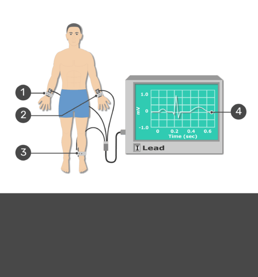 Tes yourself image for the placement of ECG electrodes with answers hidden.