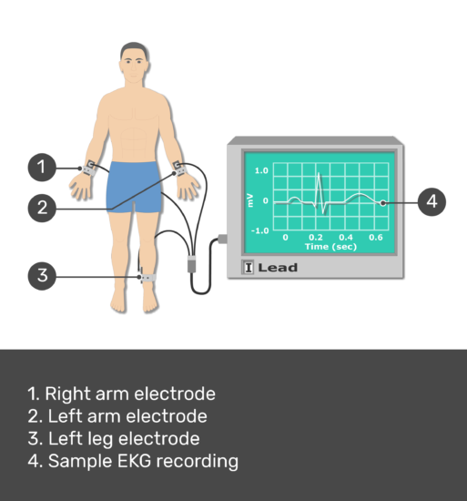 Test yourself image for the placement of ECG electrodes with answers shown: Right arm electrode, Left arm electrode, left leg electrode, sample ECG recording.