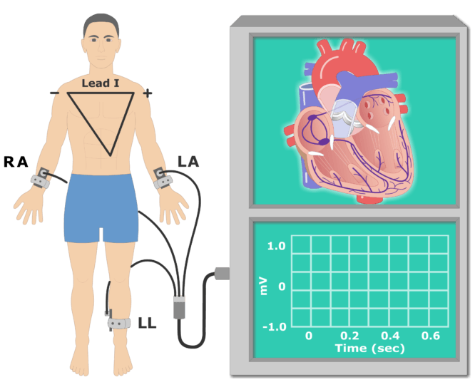 The P wave EKG recording animation slide 1