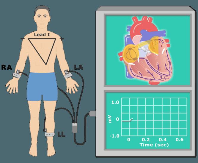 The P wave EKG recording animation slide 3