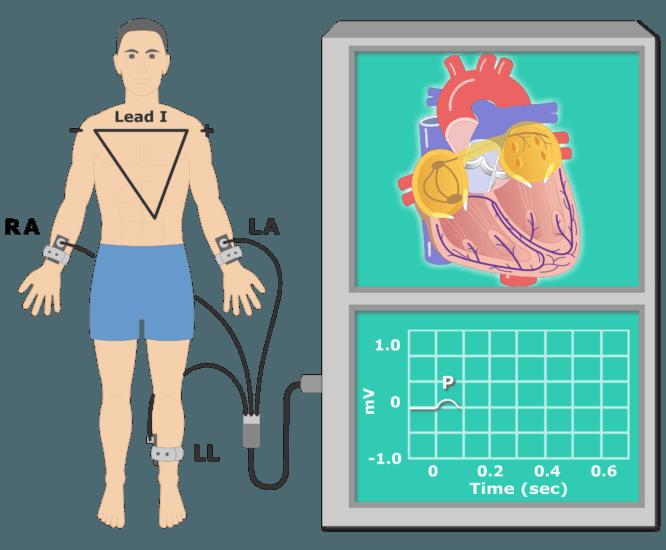 The P wave EKG recording animation slide 4