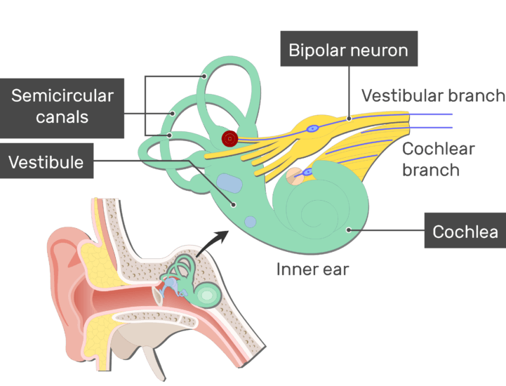 An image showing the action potential passing through the Vestibular branch of the inner ear after stimulation (vestibular branch, cochlear branch, cochlea, semicircular canals and vestibule are labeled)