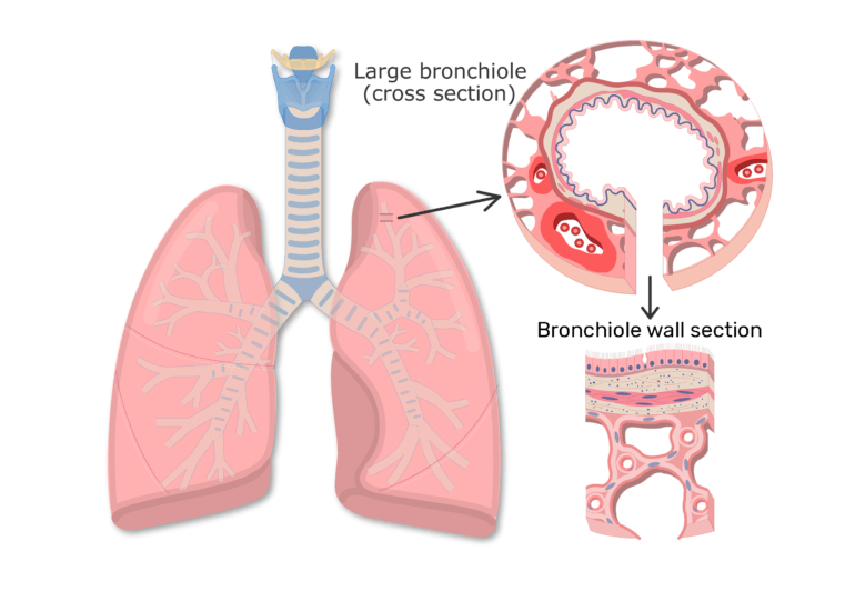 Anterior view of lungs and cross section of bronchiole wall