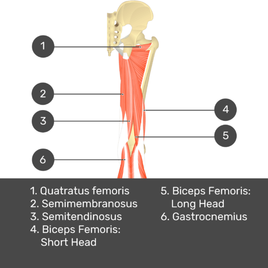 Test yourself image 10, posterior view of thigh and gluteal region. Muscles and structures labelled-quadratus femoris, semimembranosus, semitendinosus, biceps femoris: short head, biceps femoris: long head, gastrocnemius.