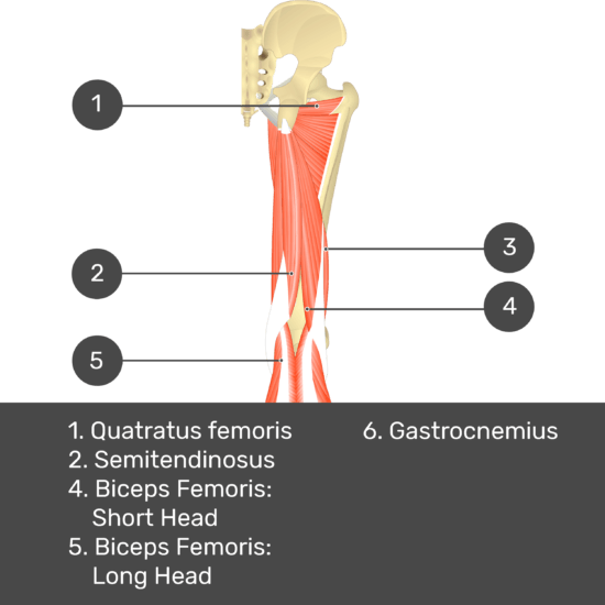 Test yourself image 11, posterior view of thigh and gluteal region. Muscles and structures labelled-quadratus femoris, semitendinosus, biceps femoris: short head, biceps femoris: long head, gastrocnemius.