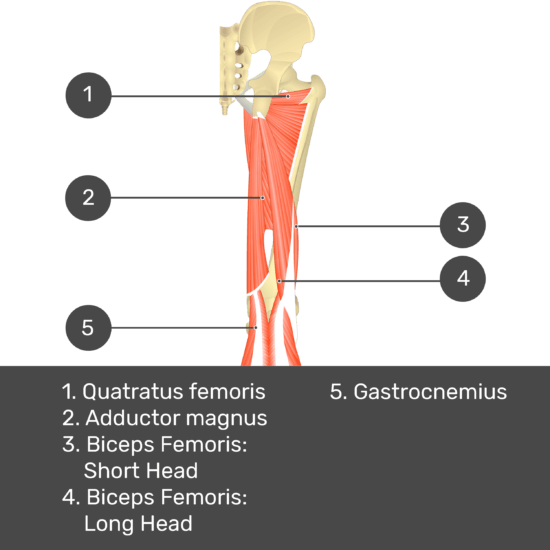 Test yourself image 12, posterior view of thigh and gluteal region. Muscles and structures labelled-quadratus femoris, adductor magnus, biceps femoris: short head, biceps femoris: long head, gastrocnemius.