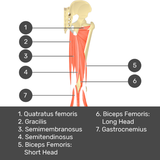 Test yourself image 9, posterior view of thigh and gluteal region. Muscles and structures labelled-quadratus femoris, gracilis, semimembranosus, semitendinosus, biceps femoris: short head, biceps femoris: long head, gastrocnemius.
