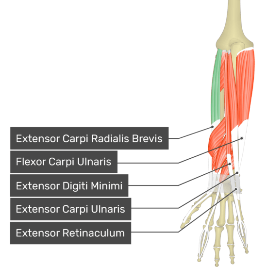 A posterior view of the forearm showing the bony elements and the deeper muscles. The visible, labelled muscles are as follows: Extensor Carpi Radialis Brevis (highlighted in green), Flexor Carpi Ulnaris, Extensor Digiti Minimi, Extensor Carpi Ulnaris and Extensor Retinaculum.