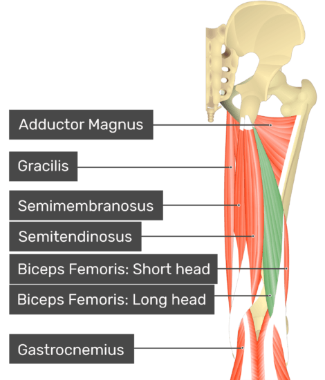 Posterior view of thigh and gluteal region, long head of biceps femoris highlighted. Labelled muscles: adductor magnus, gracilis, semimembranosus, semitendinosus, biceps femoris: short head, biceps femoris: long head, gastrocnemius.