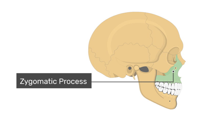 The zygomatic process highlighted