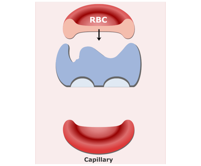 Carbonic anhydrase enzyme in RBCs animation slide 8