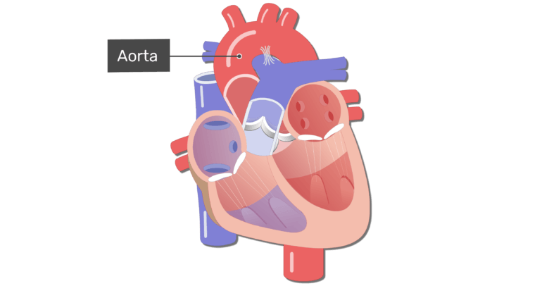 Coronal view of the heart with the aorta labelled