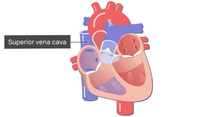 Coronal view of the heart with the superior vena cava labelled