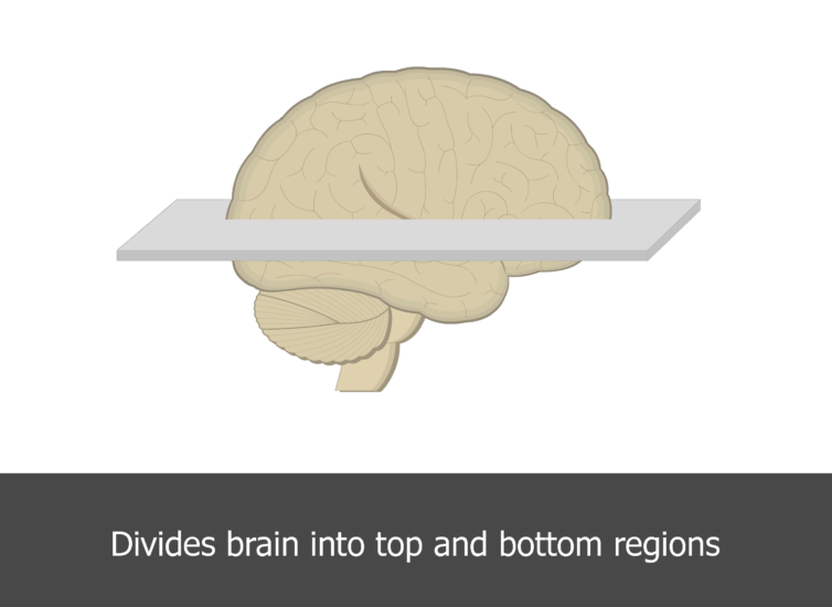 An image showing the horizontal plane of the brain (lateral view)