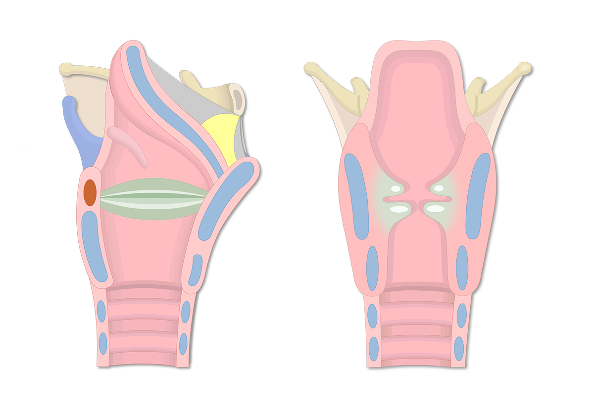 Vocal Cords (Vocal Folds) & Vestibular Folds of the Larynx
