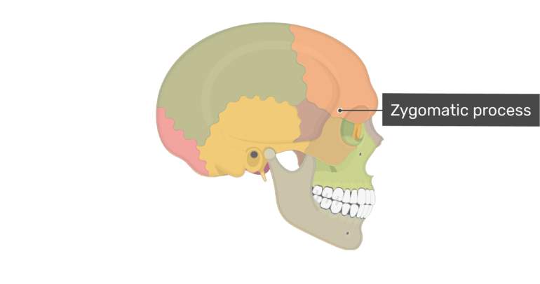Lateral view of the zygomatic arch of the skull with divisions shown