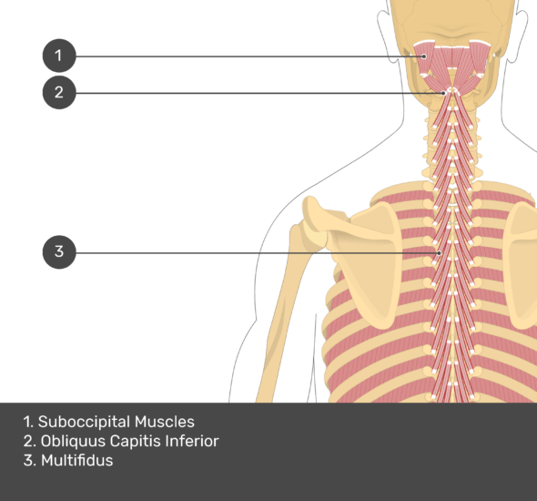 A quiz image of the posterior view of the occipital region of the skull, cervical and thoracic regions of the spinal column, upper arm, scapulae and the deeper muscle layer. The muscles of the back and neck are labelled 1-3. The answers at the bottom are as follows 1. Suboccipital Muscles 2. Obiquus Capitis Inferior 3. Multifidus.