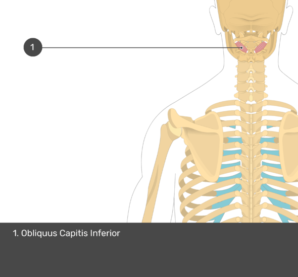 A quiz image of the posterior view of the occipital region of the skull, cervical and thoracic regions of the spinal column, upper arm, scapulae and the deeper muscle layer. The only muscle labelled 1. Is Obliquus Capitis Inferior.