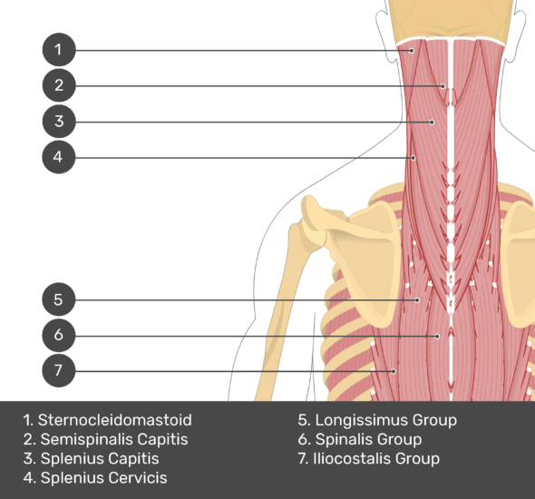 A quiz image of the posterior view of the occipital region of the skull, cervical and thoracic regions of the spinal column, upper arm, scapulae and the deeper muscle layer. The muscles of the back and neck are labelled 1-7. The answers at the bottom are as follows 1. Sternocleidomastoid 2. Semispinalis Capitis 3. Splenius Capitis 4. Splenius Cervicis 5. Longissimus Group 6. Spinalis Group 7. Iliocostalis Group.