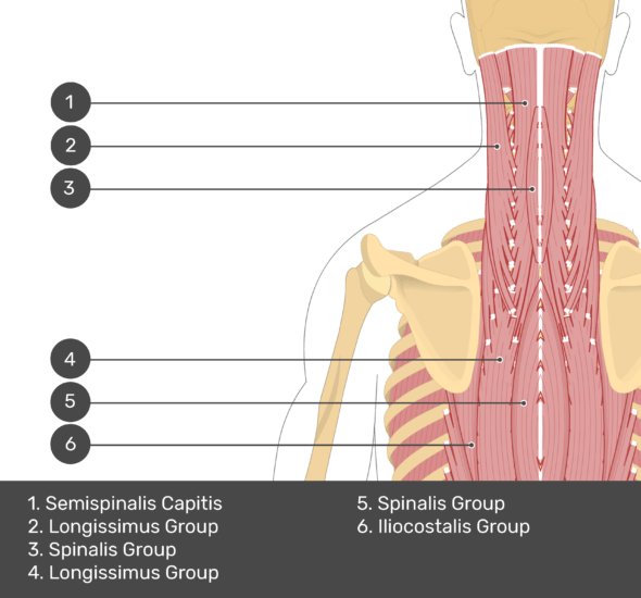 A quiz image of the posterior view of the occipital region of the skull, cervical and thoracic regions of the spinal column, upper arm, scapulae and the deeper muscle layer. The muscles of the back and neck are labelled 1-6. The answers at the bottom are as follows 1. Semispinalis Capitis 2. Longissimus Group 3. Spinalis Group 4. Longissimus Group 5. Spinalis Group 6. Iliocostalis Group.