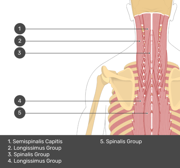 A quiz image of the posterior view of the occipital region of the skull, cervical and thoracic regions of the spinal column, upper arm, scapulae and the deeper muscle layer. The muscles of the back and neck are labelled 1-5. The answers at the bottom are as follows 1. Semispinalis Capitis 2. Longissimus Group 3. Spinalis Group 4. Longissimus Group 5. Spinalis Group.