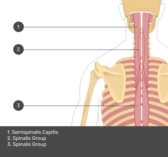 A quiz image of the posterior view of the occipital region of the skull, cervical and thoracic regions of the spinal column, upper arm, scapulae and the deeper muscle layer. The muscles of the back and neck are labelled 1-3. The answers at the bottom are as follows 1. Semispinalis Capitis 2. Spinalis Group 3. Spinalis Group.
