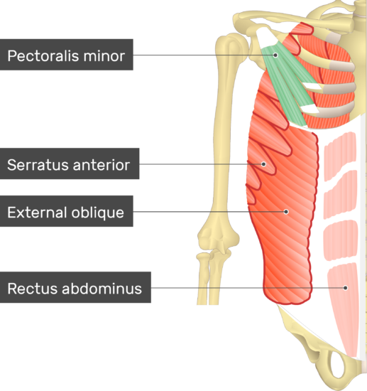 An image showing the Pectoralis minor muscle (highlighted) attached to the upper limb along with other muscles (Serratus anterior, External oblique and Rectus abdominis)