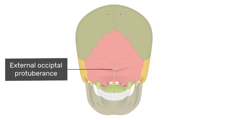 Posterior view of the external occipital protuberance with divisons shown