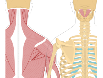 Featured image showing two views of the posterior view of the occipital region of the skull, cervical and thoracic regions of the spinal column, upper arm and scapulae. The image on the left shows the bony elements and the muscles of the back and next, the image on the right shows isolated Rectus Capitis Posterior Major Muscle.
