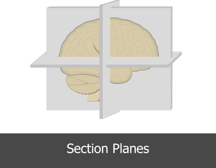 An image showing the section planes of the brain (coronal/horizontal/midsagittal)