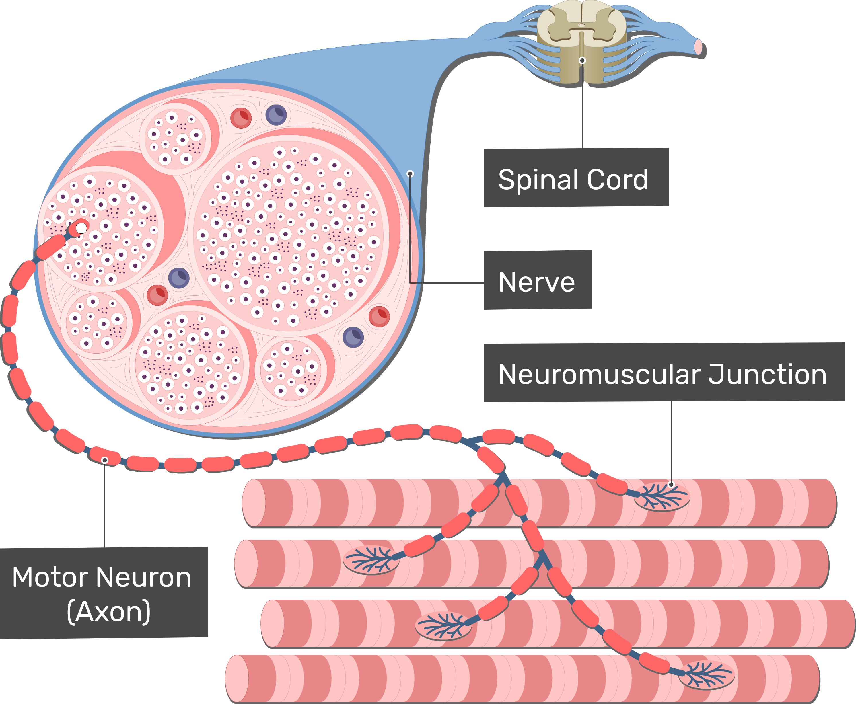 An illustration showing the spinal cord, a spinal nerve, an axon of a motor neuron connecting to skeletal muscle fibers through a neuromuscular junction