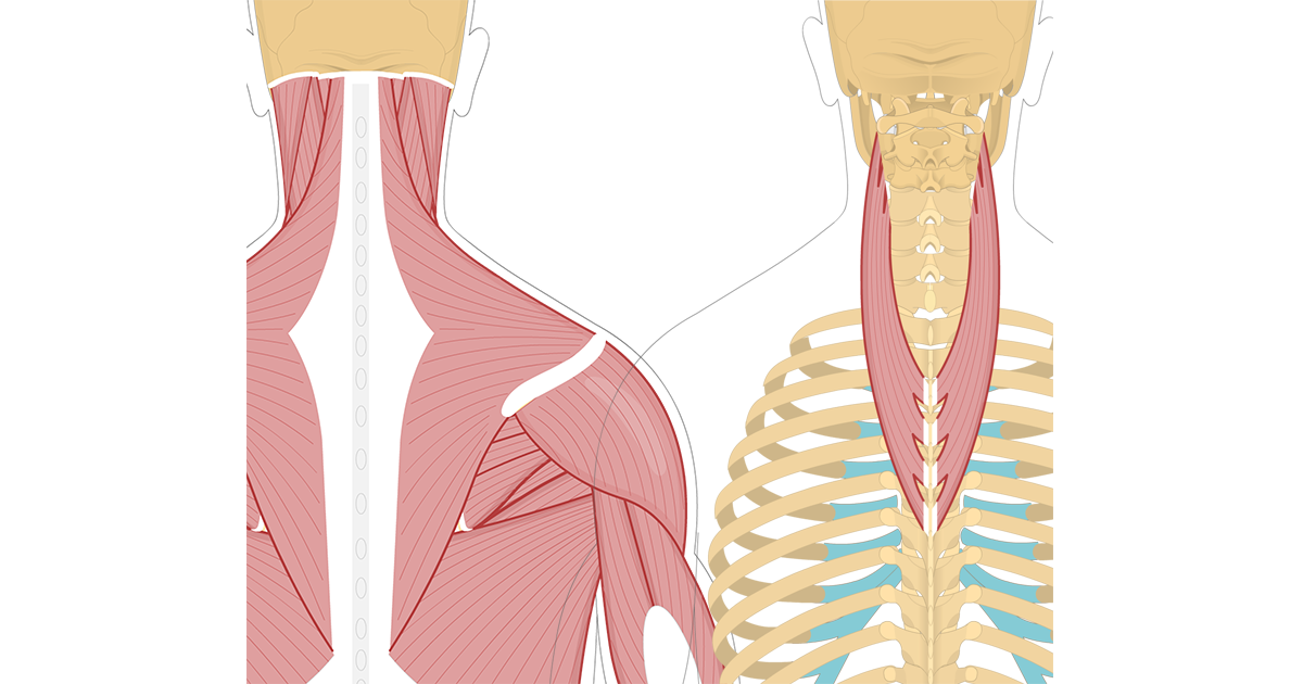 Featured image showing two views of the posterior view of the occipital region of the skull, cervical and thoracic regions of the spinal column, upper arm and scapulae. The image on the left shows the bony elements and the muscles of the back and next, the image on the right shows isolated Splenius Cervicis Muscle.