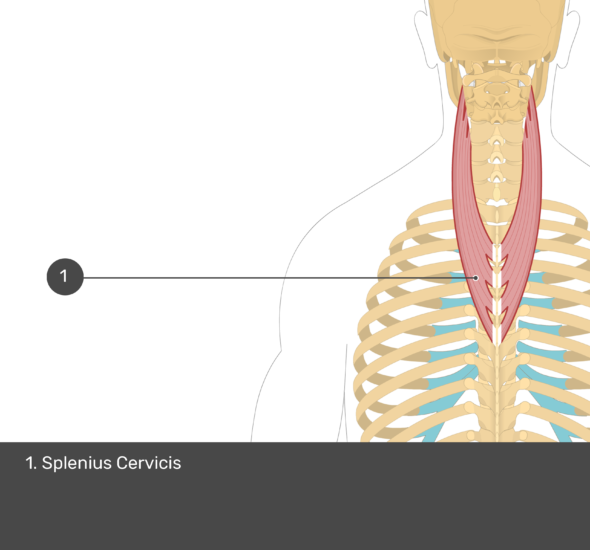 A quiz image of the posterior view of the occipital region of the skull, cervical and thoracic regions of the spinal column, upper arm, scapulae and the deeper muscle layer. The only visible muscle labelled 1. is Splenius Cervicis.
